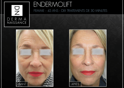 B&A Endermolift - 10 traitements - V3