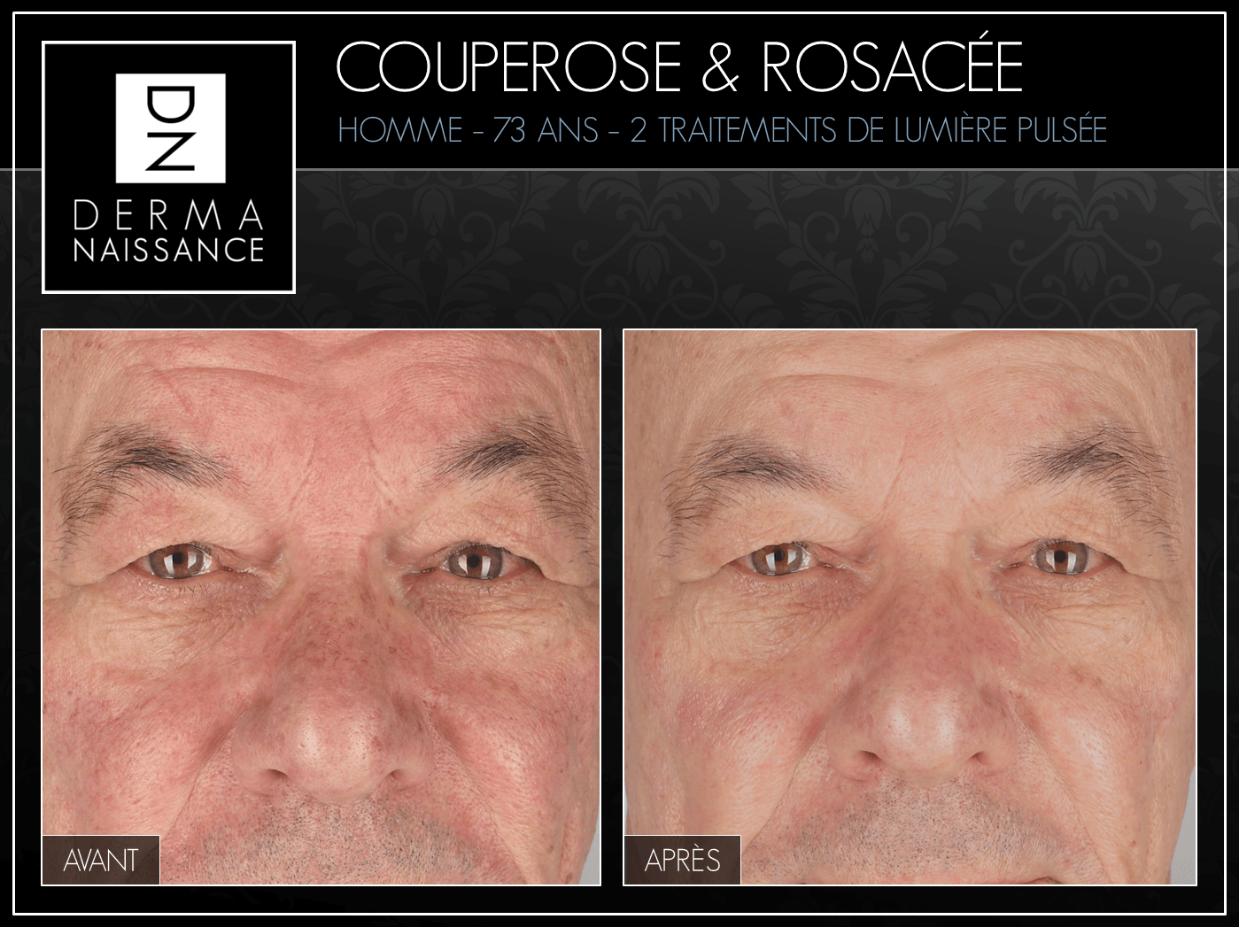 B&A Couperose - 2 traitements - Nez