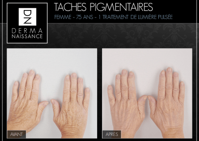 B&A Taches Pig - 1 traitement - Mains