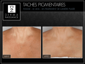 B&A Taches Pig - 1 traitements - Chest