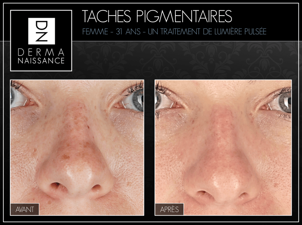 B&A Taches Pig - 1 traitements - Nez